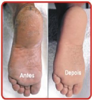 rachaduras no calcanhar,tratamento para rachaduras no calcanhar,podologa,podologia, tratamento com laser